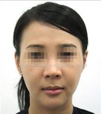 韩国VIP整形医院全脸脂肪填充30天恢复案例_术前