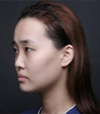 韩国德社罗伊面部提升手术对比案例_术前