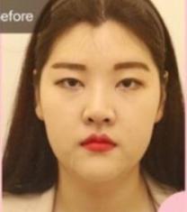 韩国MIND李康祐眼鼻轮廓整形前后照片_术前