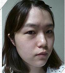 韩国JJ洪镇柱双鄂整形真人术后对比_术前