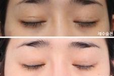 韩国soonplus眼睛修复案例图解析,多组对比超详细!