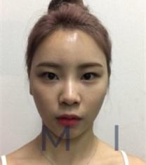 韩国mind曼德眼部整形+面部填充前后照片_术前