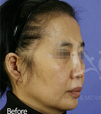 韩国美自人面部脂肪填充案例对比