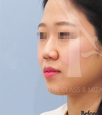 韩国美自人鼻部整形对比案例_术前