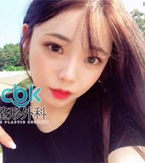 韩国CBK轮廓三件套+眼部整形真人案例照片_术后