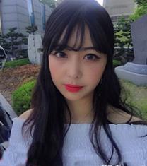 韩国歌柔飞面部吸脂+v 线提升手术对比案例