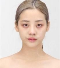 韩国MIGO整形外科颧骨内推+自体脂肪面部填充前后照片_术前