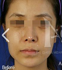 韩国美自人下颌角整形手术对比案例_术前