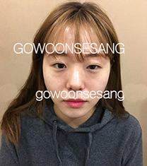 韩国高恩世上眼鼻综合整形案例对比_术前