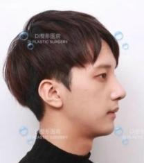 韩国DI李玟荣院长驼峰鼻矫正前后对比照片_术后