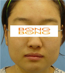 韩国棒棒整形外科面部轮廓整形案例图_术前