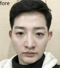 韩国MIGO医院歪鼻矫正前后对比照片_术前