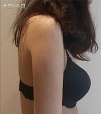 韩国丽妍k整形医院手臂吸脂真人案例对比