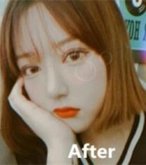 韩国MIGO眼鼻+面部吸脂整形前后对比照片_术后