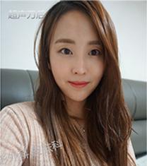 韩国丽妍k超声刀面部提升真人案例对比_术后