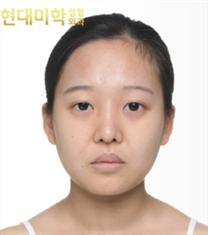 韩国现代美学双眼皮+脂肪填充案例对比