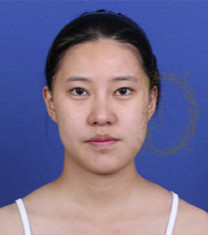 韩国女神医院下颌角整形案例对比_术前