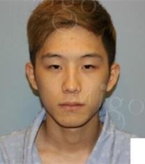 韩国MIGO医院男士眼鼻整形前后对比照片_术前