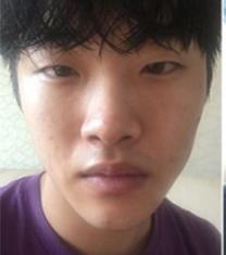 韩国GK男士眼鼻综合整形案例对比_术前