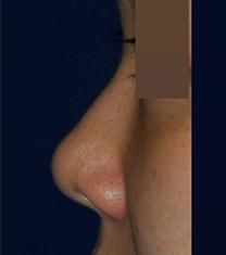 韩国rococo整形外科鼻整形案例对比_术前