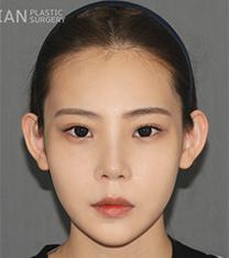 韩国拉菲安整形外科面部轮廓综合整形案例_术后