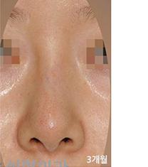韩国拉菲安整形外科歪鼻矫正真人案例对比_术后