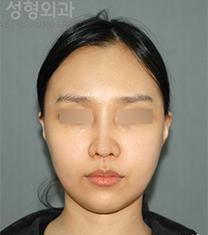 韩国拉菲安整形外科颧骨整形真人自拍对比_术后