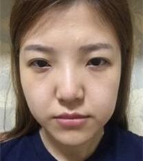 韩国加美朴建昱眼鼻整形术后3个月恢复照片