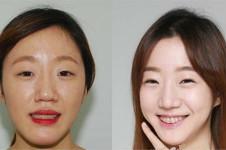 韩国做轮廓的医生排名,齐娥和英格金明镇算好吗?