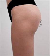 韩国棒棒整形外科臀部整形案例恢复对比