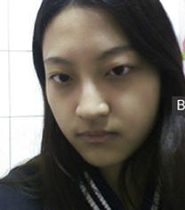 韩国motive眼部整形对比案例_术前