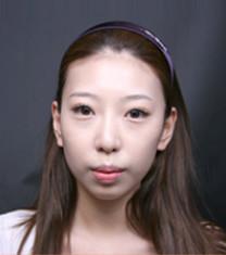 韩国德社罗伊凸嘴+提升术对比案例