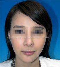 韩国VIP整形医院全脸脂肪填充30天恢复案例_术后