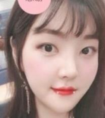 韩国MIND李康祐眼鼻轮廓整形前后照片_术后