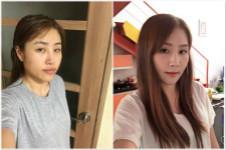 韩国now美徐百建是之前在韩国爱宝整形做轮廓的徐院长吗?