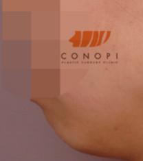 韩国高诺鼻下巴整形手术对比案例_术前