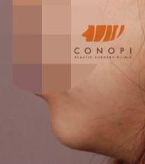 韩国高诺鼻下巴整形手术对比案例_术后