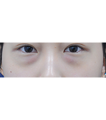 韩国新沙L祛黑眼圈整形真人前后对比_术前