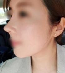 韩国丽丝塔金东奭小翘鼻整形前后对比照片_术后