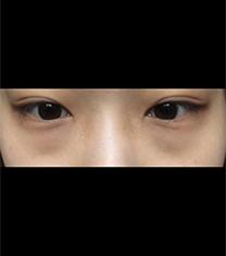 韩国新沙L整形外科黑眼圈手术真人案例对比