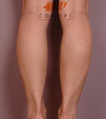 韩国高诺鼻小腿神经阻断术对比案例