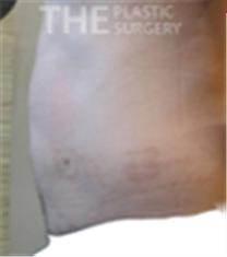 韩国the整形外科腹部吸脂案例前后对比