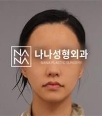 韩国娜娜整形医院面部轮廓整形前后照片_术后