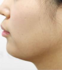 韩国丽得姿整形医院咬肌缩小术对比案例