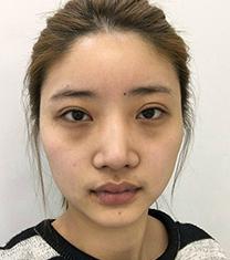 韩国必当归整形外科双眼皮修复案例对比