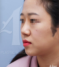 韩国美自人鼻部整形对比案例_术后