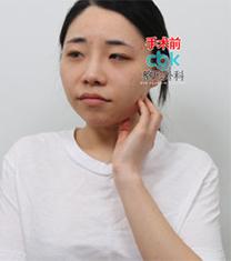 韩国CBK轮廓三件套+眼部整形真人案例照片_术前