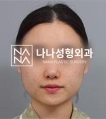 韩国NANA整形医院轮廓整形前后照片_术前