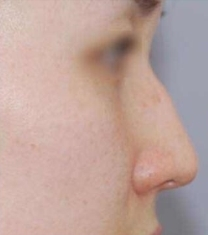 韩国nana整形驼峰鼻矫正前后对比照片_术前