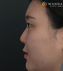 韩国奥纳比医院鼻部整形手术对比案例_术前